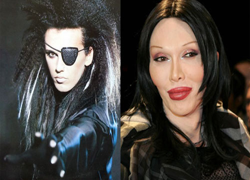 Pete-Burns_celebnosejob.com_foto