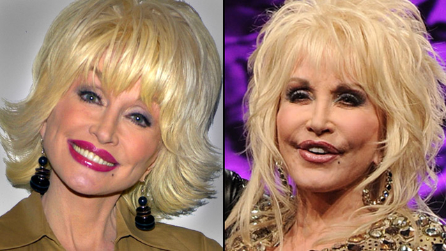 dolly_parton-extreme-facelift